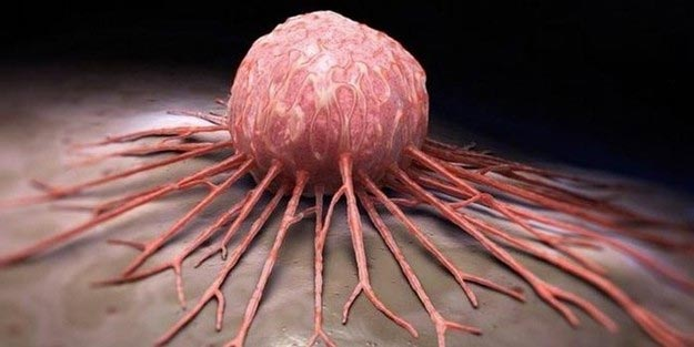 human papilloma virus kanserleri)